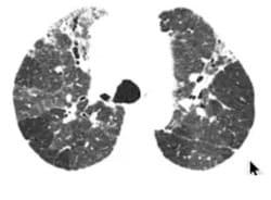 polmonite interstiziale acuta